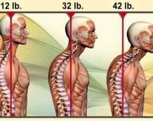 anterior-head-syndrome-430x339