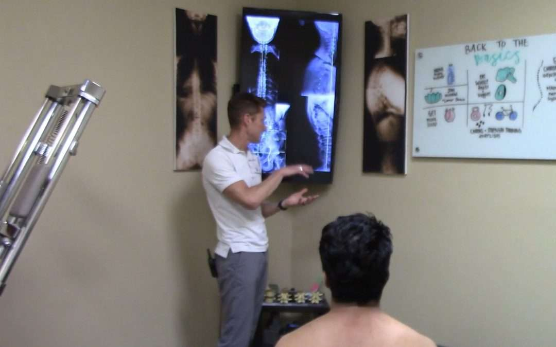 After not being able to workout for 3 years, 28 yr. old male is back to heavy lifting with Gonstead Chiropractic San Diego