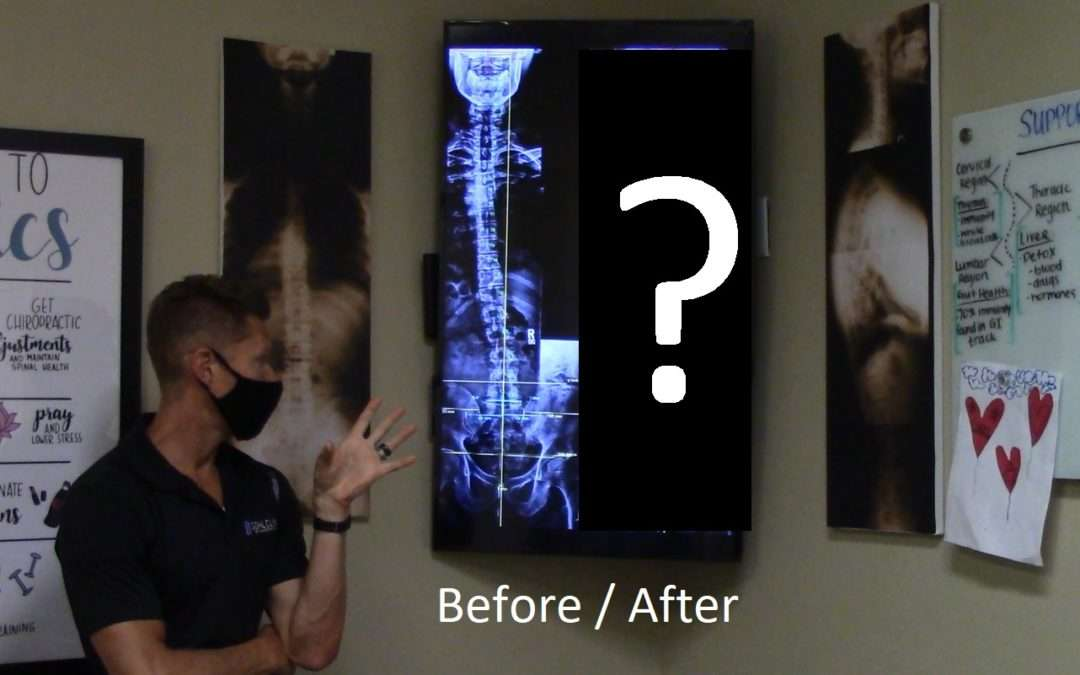 Radical X-Ray changes on chronic low back case posted on 06/16 (Gonstead Chiropractic San Diego)